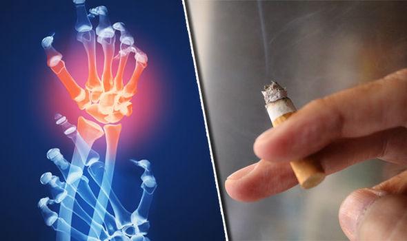 Rheumatoid-Arthritis-3