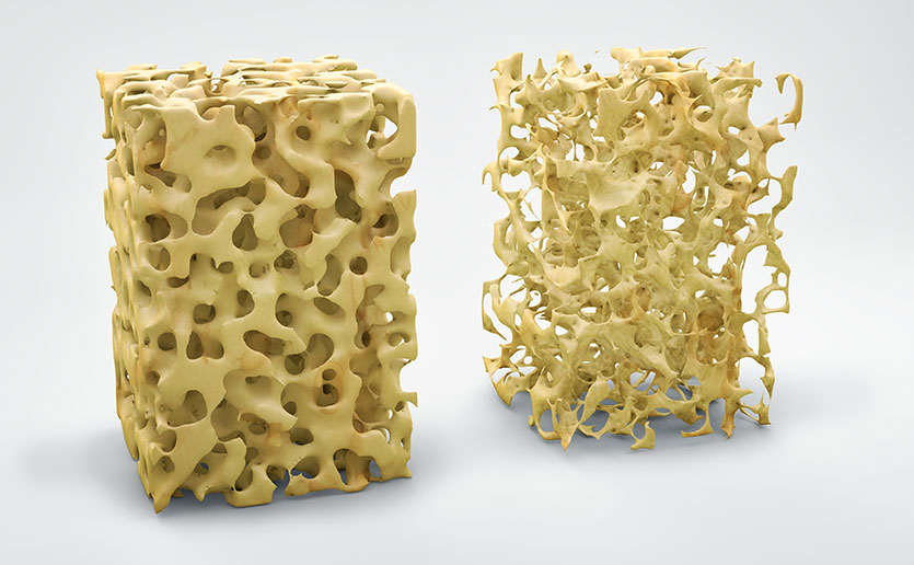osteoporosis-diet-1