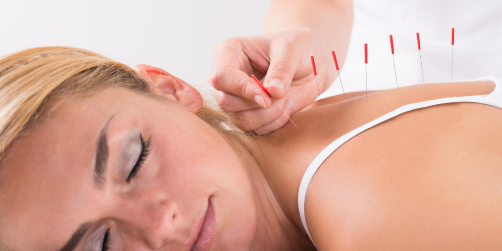 Best-neck-pain-relief-naturally:-Acupuncture-and-acupressure