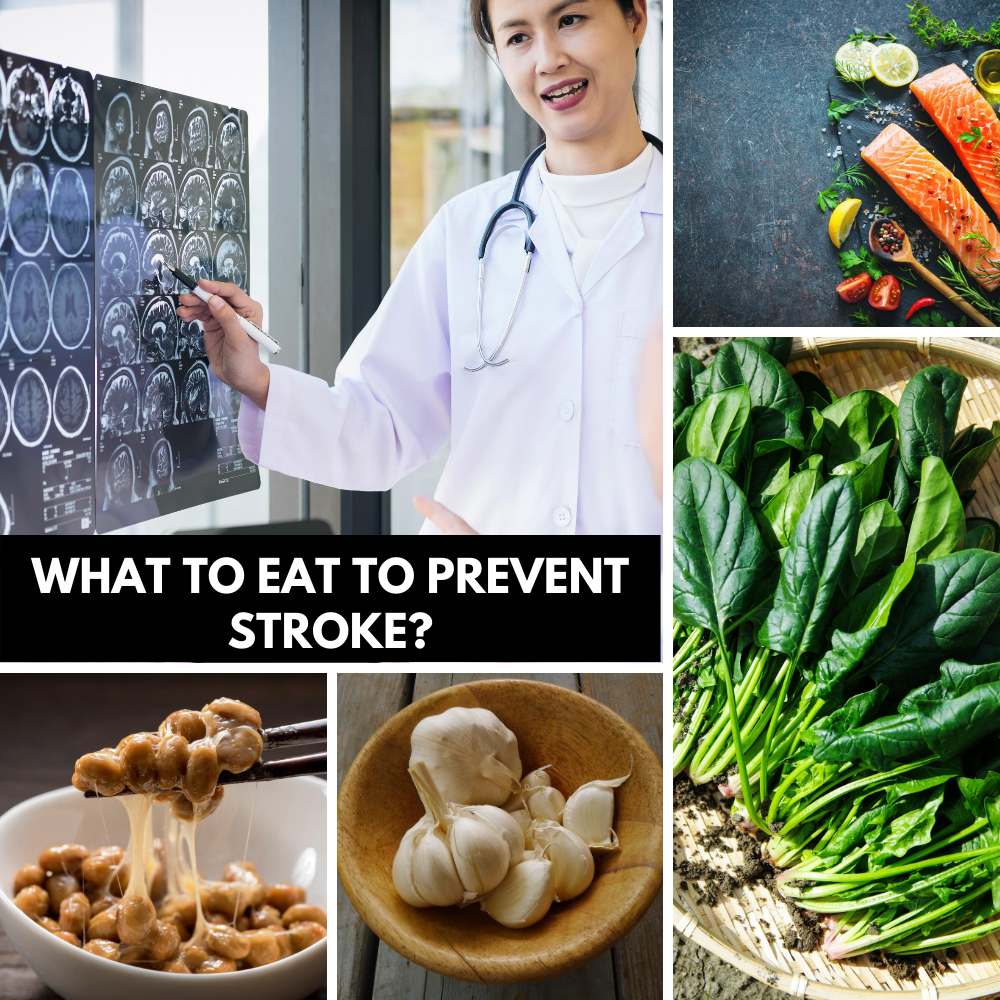 What to eat to prevent stroke